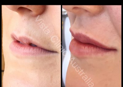 Dermal filler melbourne vista clinic melbourne