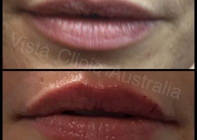 award lip filler melbourne