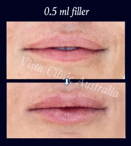 lip cosmetic injection Melbourne