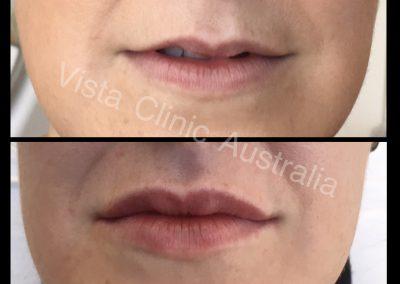 lip filler Melbourne