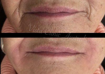 lip wrinkles rejuvenation Melbourne