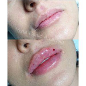 big lips melbourne