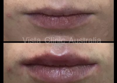 dermal filler for lips melbourne best cosmetic clinic near me