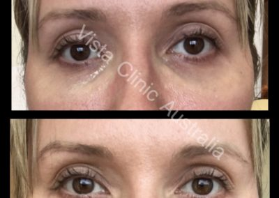 TEAR TROUGH FILLER DERMAL FILLER FOR EYES UNDER EYES