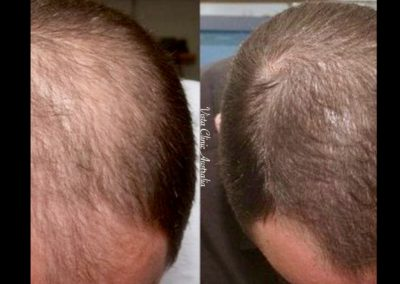 hair growth Melbourne