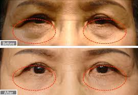 eyelids treatment