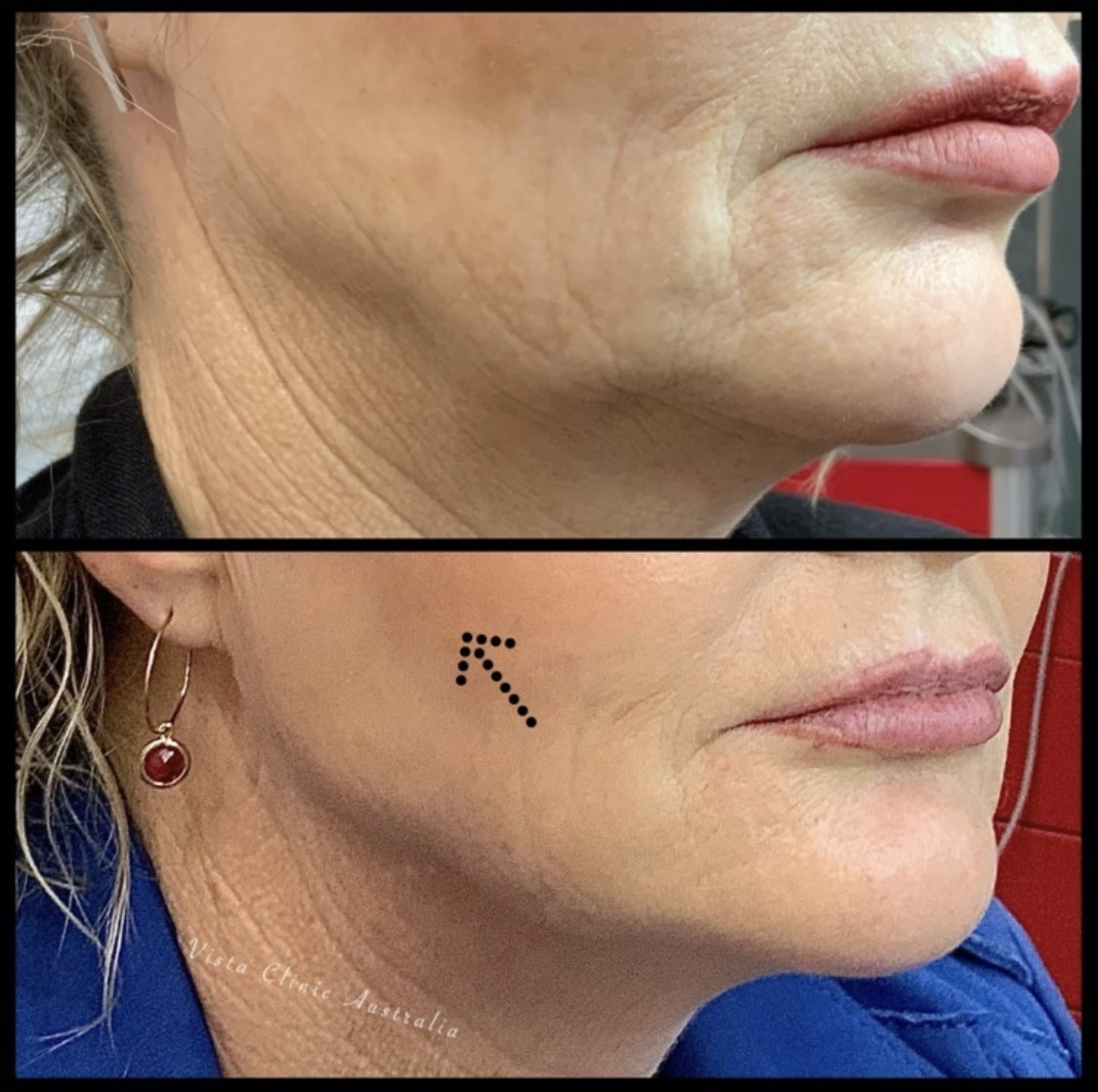 Lifting combination cosmetic treatments